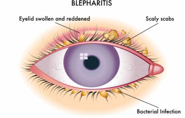 Blepharitis: Flaky Eye Lashes